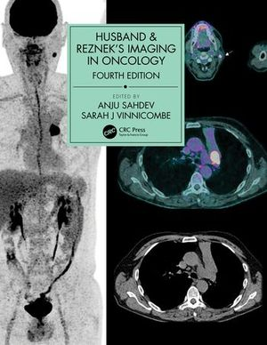 HUSBAND & REZNEK'S IMAGING IN ONCOLOGY